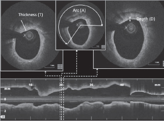Coronary calcification and stent expansion