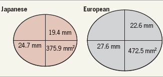 Comparison of annulus dimensions between Japanese and Europeans