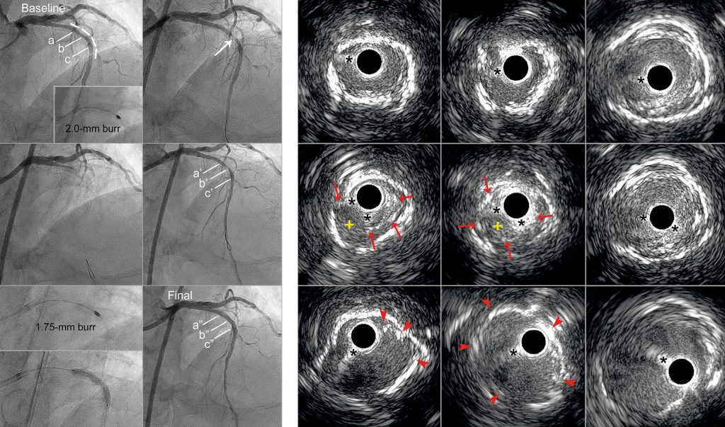 Acute coronary occlusion due to stent deformation caused by rotational atherectomy of an underexpanded, undilatable stent: an unusual complication and its bail-out