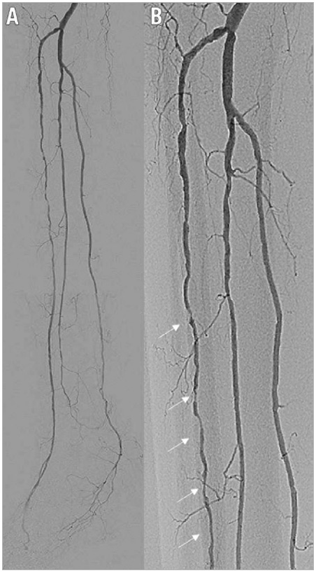 Figure 1. Pre intervention. A) Baseline angiography showing multiple severe stenotic lesions in the anterior tibial artery as well as plantar artery disease. B) Magnified image of multiple severe stenotic lesions in the anterior tibial artery (arrows).