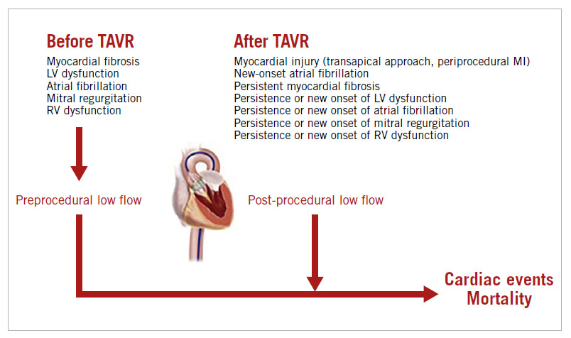 Figure 1. Predictors and impact on outcomes of low flow state prior to and after TAVR. MI: myocardial infarction