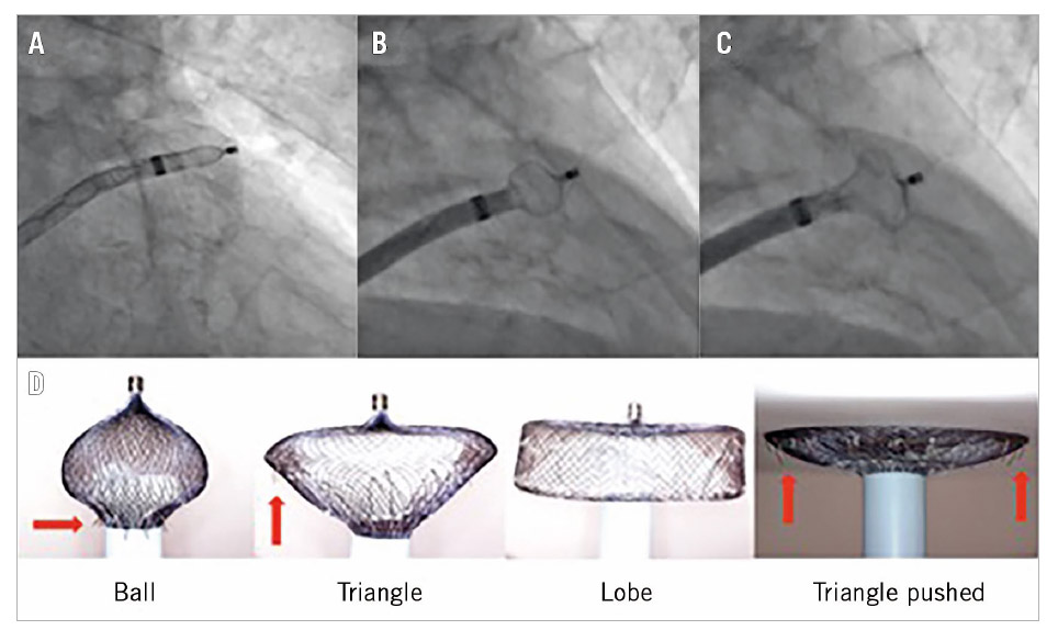 """Figure 1. Evolutionary steps in safer deployment of the AMPLATZER Cardiac Plug and the AMPLATZER Amulet device. """"Unsheathing"""" in the left atrial appendage (A) to form a """"ball"""" to enter (B) to create a """"triangle"""" for harmless device pushing in shallow anatomies (C). Gradual and controlled pushing of the delivery wire forms the Amulet lobe in different ways and shapes (D). The """"ball"""" shape is used for initial engagement and rotation/orientation of the sheath as the stabilising wires (red arrows) are close to the sheath and cannot damage the LAA wall, whereas the """"triangle"""" shape is used to push against the LAA wall as the distal lobe pin is retracted inside the lobe, but without rotating the device as the stabilising wires are now exposed (red arrows)."""