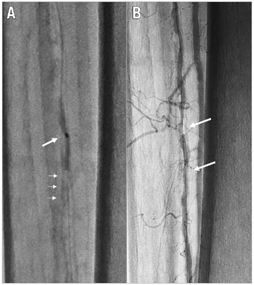 Figure 2. Balloon failure due to underlying calcification in the mid segment of the anterior tibial artery. A) Even a 1.25×15 mm semi-compliant balloon was stuck just before the calcified lesion (small arrows), and the balloon waist remained due to calcification (large arrow). B) Angiography showing the remaining severe stenosis in the mid segment of the anterior tibial artery (arrows).