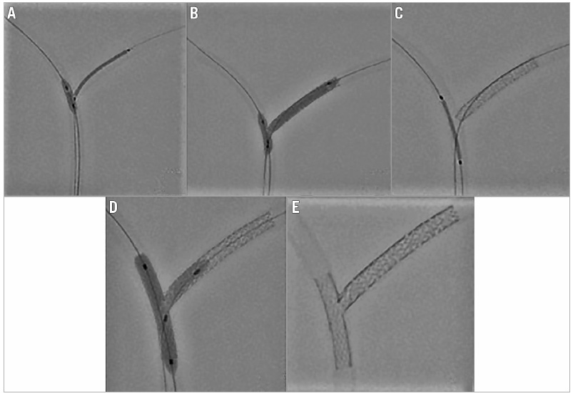 Figure 2. Nano-crush bench test. A) The main branch balloon is inflated at nominal pressure and the side branch stent is pulled to the inflated balloon. B) First kissing balloon inflation with the side branch stent balloon (pulled inside the main branch) and main branch balloon carried out at 14-16 atm. C) The main branch stent is placed and deployed at nominal pressure. D) Final kissing balloon inflation is performed. E) Final result showing minimally crushed stent.