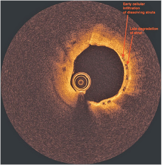 Figure 2. Optical coherence tomography image of the BVS.