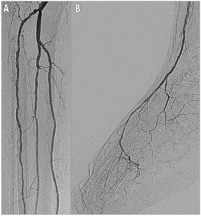 Figure 4. Post intervention. A) Final angiography showing excellent revascularisation. B) The establishment of one straight-line flow to the pedal arch was achieved. Note the absence of angiographically relevant distal embolisation, even in the below-the-ankle segment.