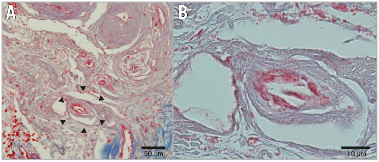 Figure 5. Pathological findings of the amputated right toe. A) 20 μm-long cholesterol crystal in the capillaries (arrows). B) Magnified image of the crystal.