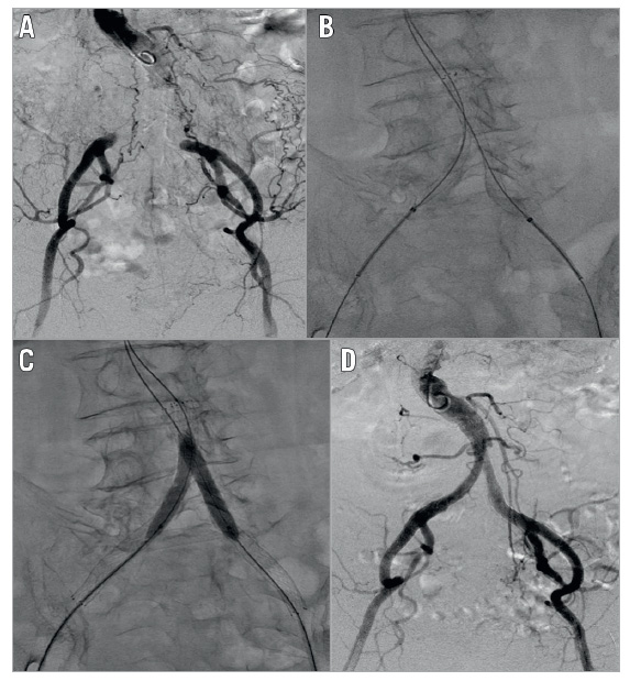 Figure 1. One of the interventional procedures. A) Preprocedural angiography showed total occlusion of the terminal abdominal aorta and bilateral common iliac artery. B) Kissing stent with self-expanding nitinol stents after guidewire crossing. C) Post balloon dilatation. D) Postoperative angiography showed a favourable flow.