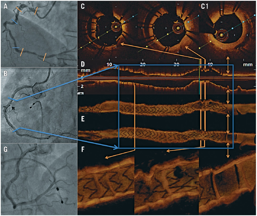 Concertina effect caused by stents: insights from OCT