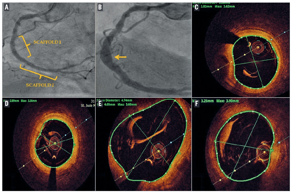 Multiple coronary artery aneurysms seen five years after Absorb implantation during routine angiographic and OCT follow-up