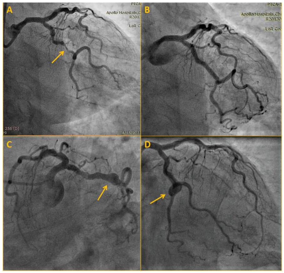 Supplementary Figure 1. Left circumflex artery angiogram at scaffold deployment and 5- year follow-up.