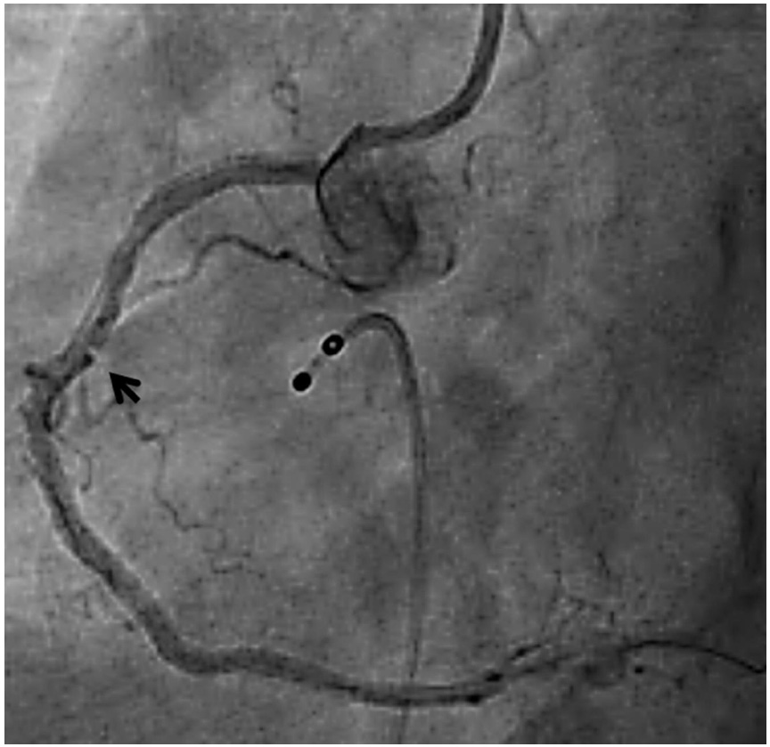 Supplementary Figure 2. Magnified view of angiogram to show the pseudostenosis within the mid RCA stent. Arrow pointing towards the sharp vessel wall infolding within the stented mid RCA segment.