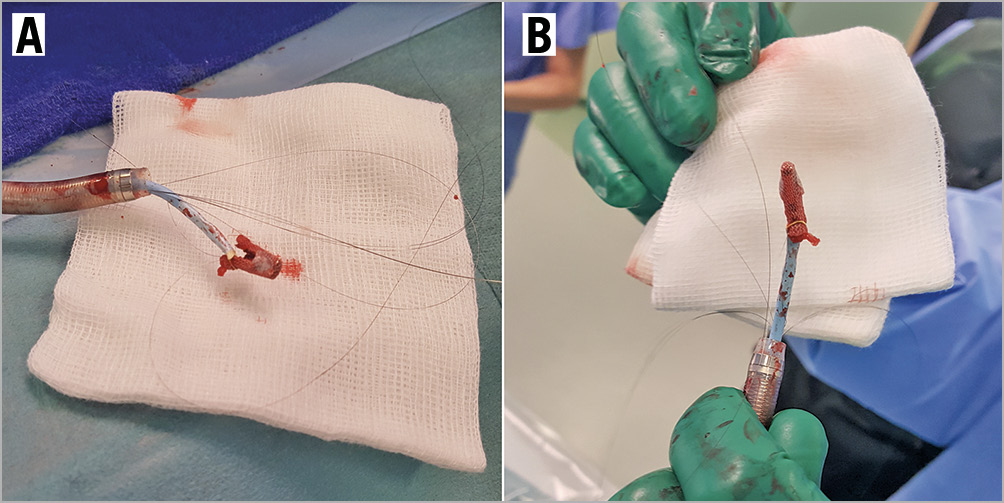 Figure 4. Embolised MitraClip removed. A, B) Photographic images of the MitraClip removed from the patient, with the GooseNeck snare still attached to one of the clip arms.