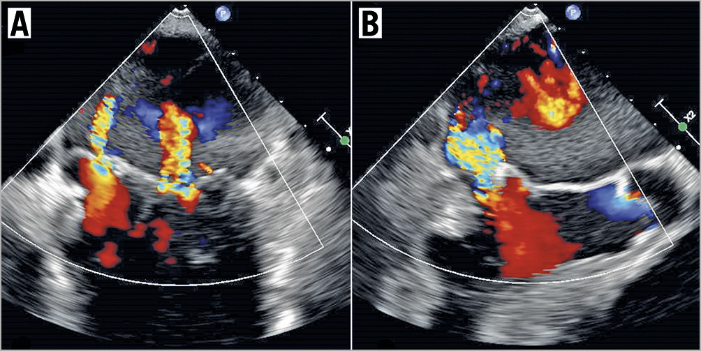 Figure 5. Residual MR. TOE images of residual moderate to severe MR in the intercommissural view (A) and the LVOT view (B), with just a single MitraClip deployed. There was no evidence of torn leaflets seen.