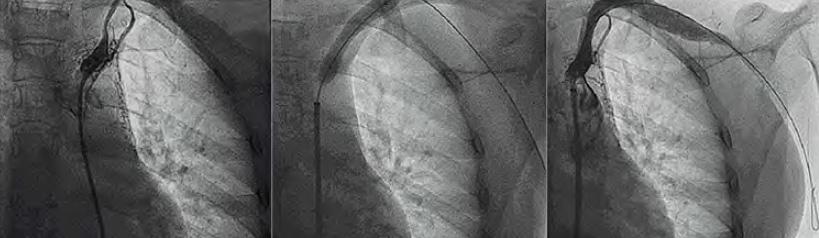 Bilateral pulsatile carotid aneurysm
